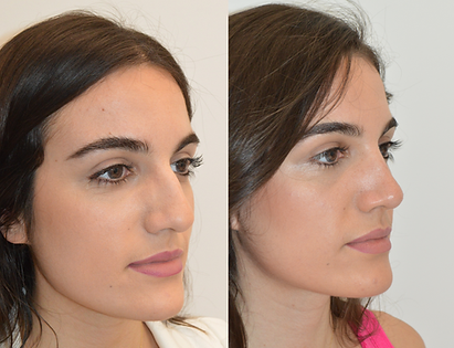 Rhinoplasty - Patient AB3.png