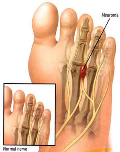 interdigitial neuroma, neuroma treatment, mortons neuroma, nerve pain, forefoot pain, tingling toes, pins and needles toes