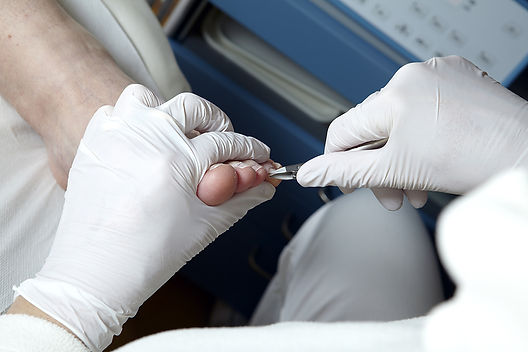 Nail cutting podiatrist, corn treatment, callous, podiatry fitzroy north, carlton north