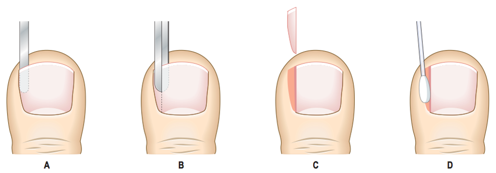 Ingorwn toenails, infected nail, ingrown toenail, ingrown toe nail, nail surgery, toenail surgery