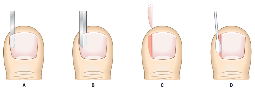 Ingrown Toenails and Nail Surgery | Fitzroy Foot and Ankle Clinic