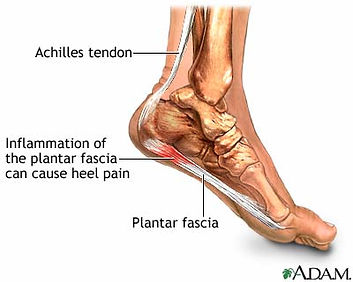 Heel spurs, plantar fasciitis, heel pain, ankle spurs, foot spurs, orthotics for plantar fasciitis