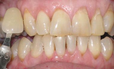 Grey Teeth