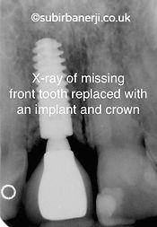 Dental Implants Ealing