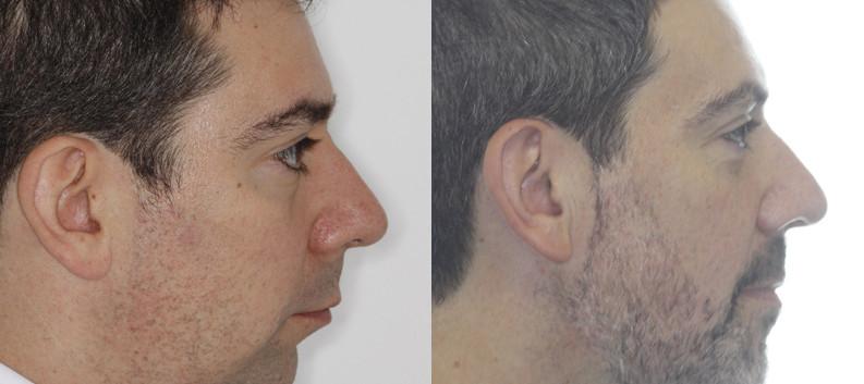 Case report 2: Short lower jaw leading to obstructive sleep apnoea