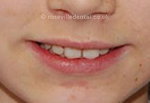 Orthodontics-after.jpg