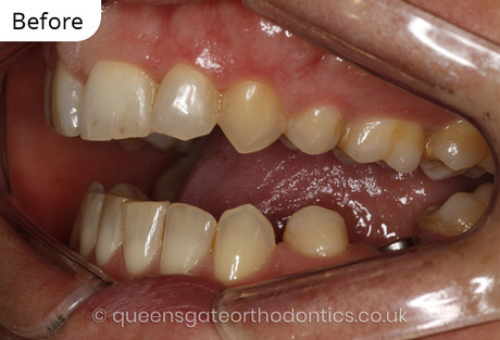 Case report 7: Deterioration of the bite in midlife resulting in a large anterior open bite