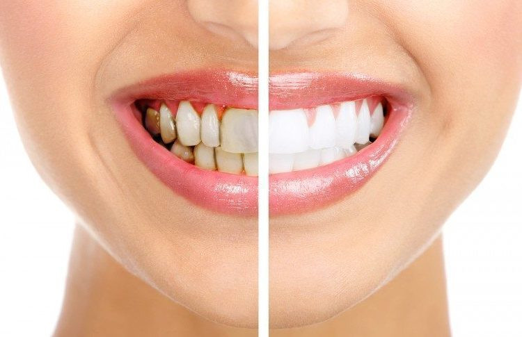 The Best Solution For Stained Teeth