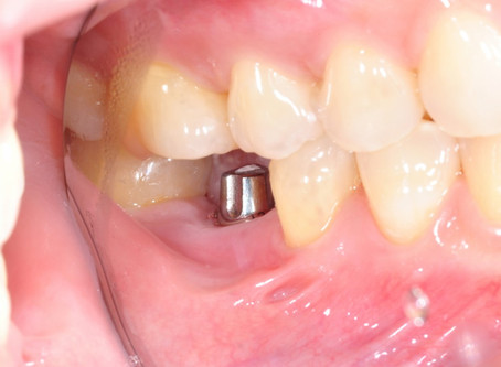 Dental Implants: There are times …