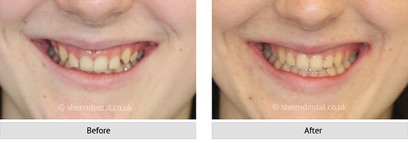 before-after-ortho10.jpg