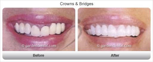 crowns-bg-af3.jpg