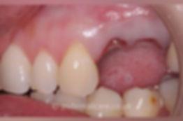 implants-b.jpg