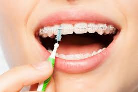 Braces and Oral Hygiene at Hello Dental