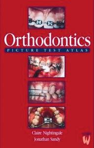 Orthodontics Picture