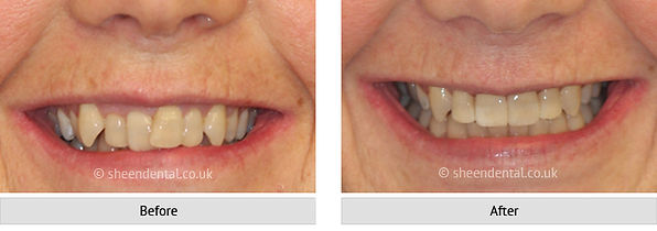 before-after-ortho72.jpg