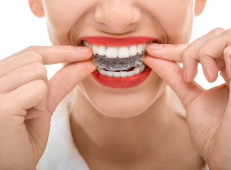 6 things you should know before getting braces
