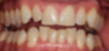 braces-before1.png