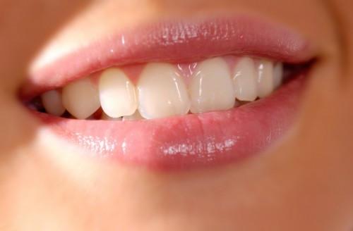 Missing teeth in Richmond