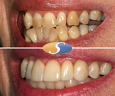 Fixed braces to align teeth & open space-3