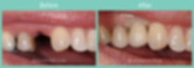 implant-ba3.jpg