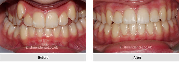 before-after-ortho7