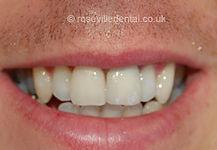 Smile-Restoration-after.jpg