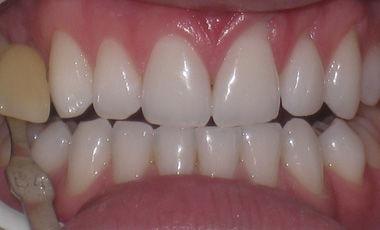 Very Yellow Teeth