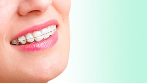 Fixed cosmetic braces at Fresh