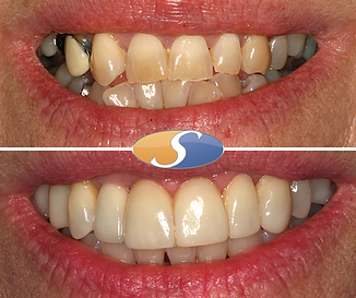 Fixed braces to align teeth & open space-2