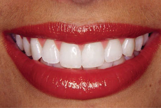 smile-assessment-test-2.jpg