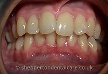Orthodontics & Whitening