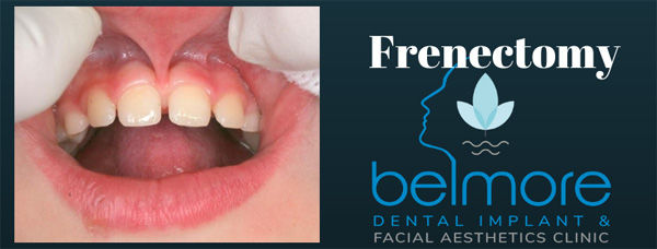 new-frenectomy.jpg