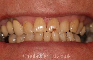 teethwhitening-before-1.jpg