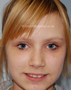 Orthodontics-face.jpg