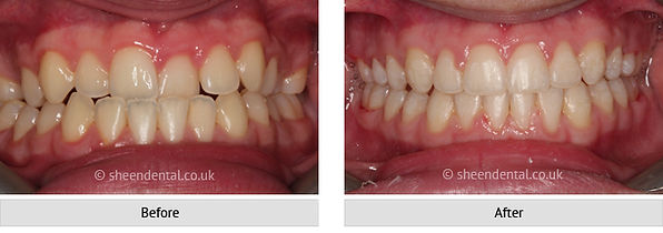 before-after-ortho28
