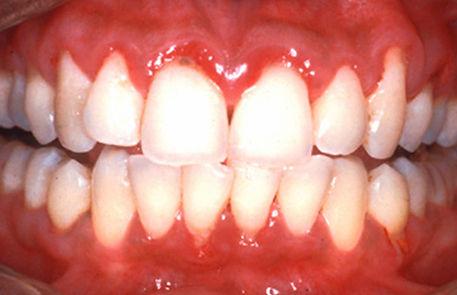 healthy-gums-img-3.jpg