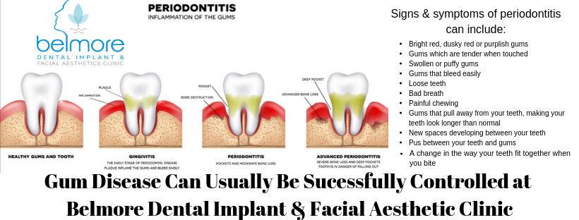 signs--symptoms-of-periodontitis.jpg