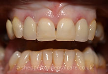 Crowns & Composite Bonding