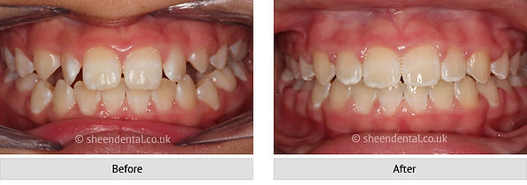 before-after-ortho4.jpg