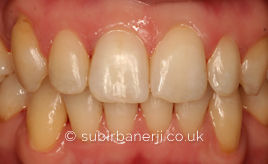 Teeth Straightening Ealing
