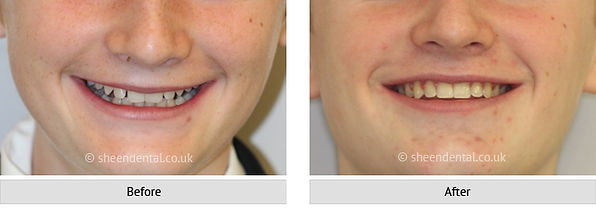 before-after-ortho16