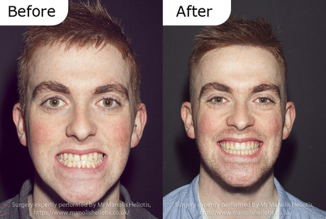 Case report 5: Long lower jaw and short upper jaw, causing an anterior crossbite and flat facial profile