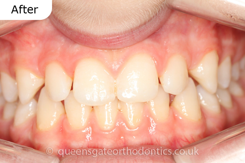 Interceptive treatment with a removable expander to correct an anterior crossbite.