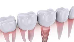 Change your world with dental implants