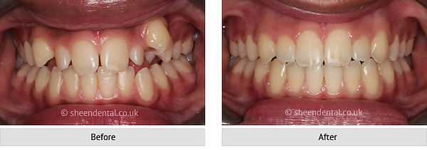 before-after-ortho2