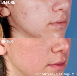 ZO beforeafter acne_edited.jpg
