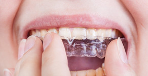 Should Your Teeth Shift After Wearing Braces?
