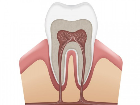 Avoiding the need for a root canal….