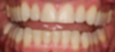 braces-after1.png