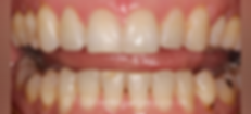 braces-after2.png